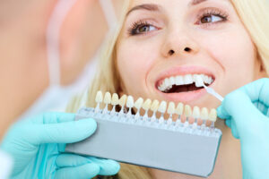 getting teeth color matched for veneers
