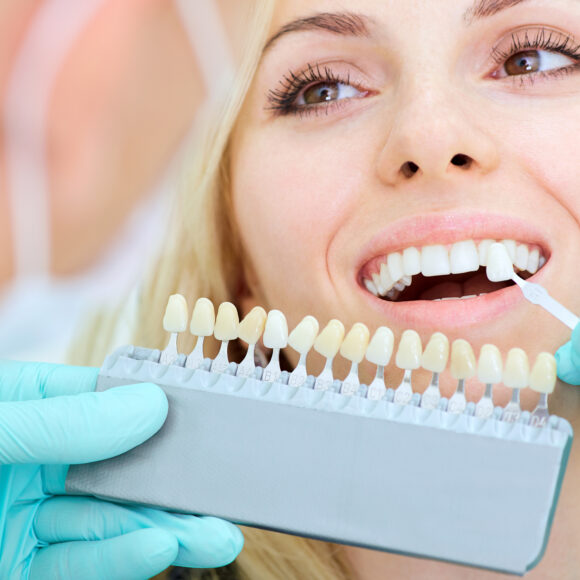 What are the most common cosmetic dental procedures?