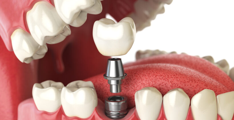 When should I consider getting dental implants?